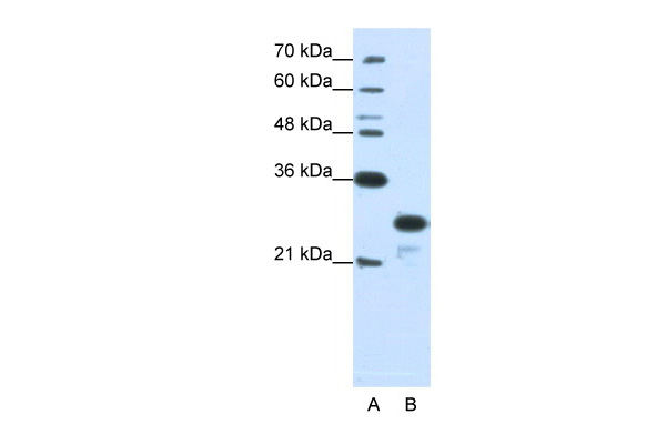 ANP32A antibody - N-terminal region (ARP40204_T100) in Human Jurkat cells using Western Blot