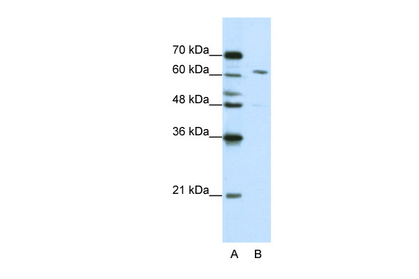 CPSF6 antibody - middle region (ARP40697_T100) in Human Jurkat cells using Western Blot