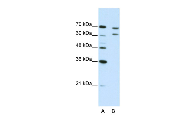 CPSF3 antibody - N-terminal region (ARP40840_T100) in Human Jurkat cells using Western Blot