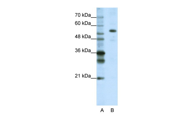 FLJ12529 antibody - C-terminal region (ARP41012_T100) in Human HepG2 cells using Western Blot
