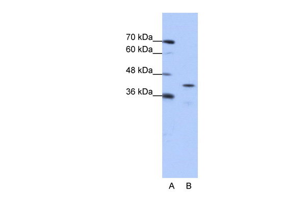 CPEB2 antibody - middle region (ARP41185_P050) in Human Jurkat cells using Western Blot