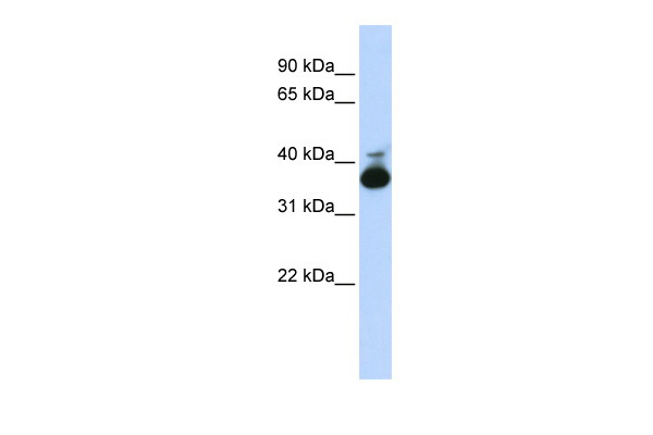 ALDOB antibody - middle region (ARP41365_P050) in Human Liver cells using Western Blot