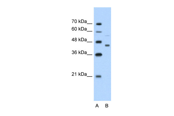 CKMT2 antibody - N-terminal region (ARP41478_T100) in Human Jurkat cells using Western Blot