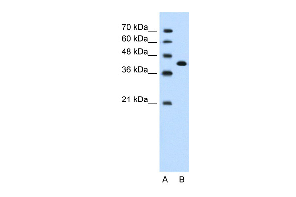 CEACAM6 antibody - middle region (ARP41504_T100) in Human Jurkat cells using Western Blot