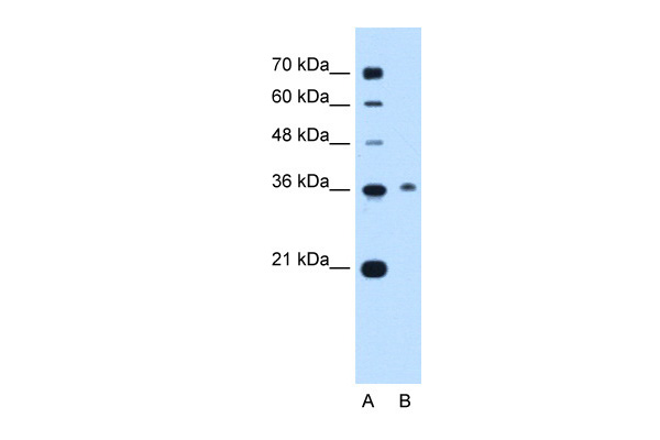C11orf54 antibody - C-terminal region (ARP41594_P050) in Human Jurkat cells using Western Blot