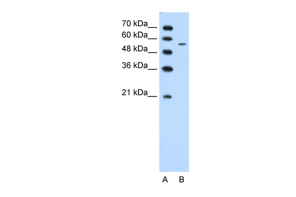 CHST7 antibody - middle region (ARP41615_T100) in Human Jurkat cells using Western Blot