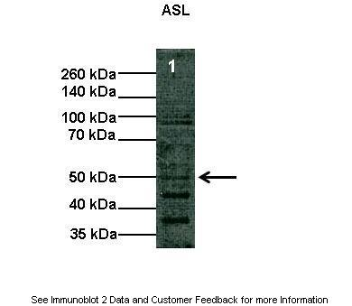 ASL antibody - middle region (ARP41667_T100) in Human cells using Western Blot
