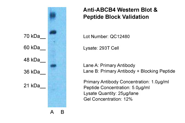 ABCB4 antibody - N-terminal region (ARP41741_P050) in 293T Whole Cell cells using Western Blot