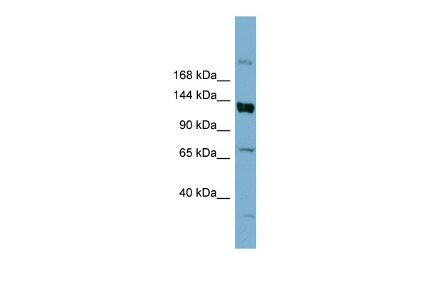 ABCB4 antibody - middle region (ARP41742_P050) in Human HT1080 cells using Western Blot
