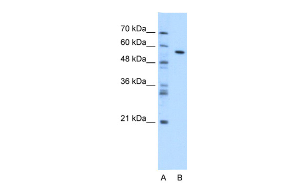 CES1 antibody - N-terminal region (ARP41877_T100) in Transfected 293T cells using Western Blot