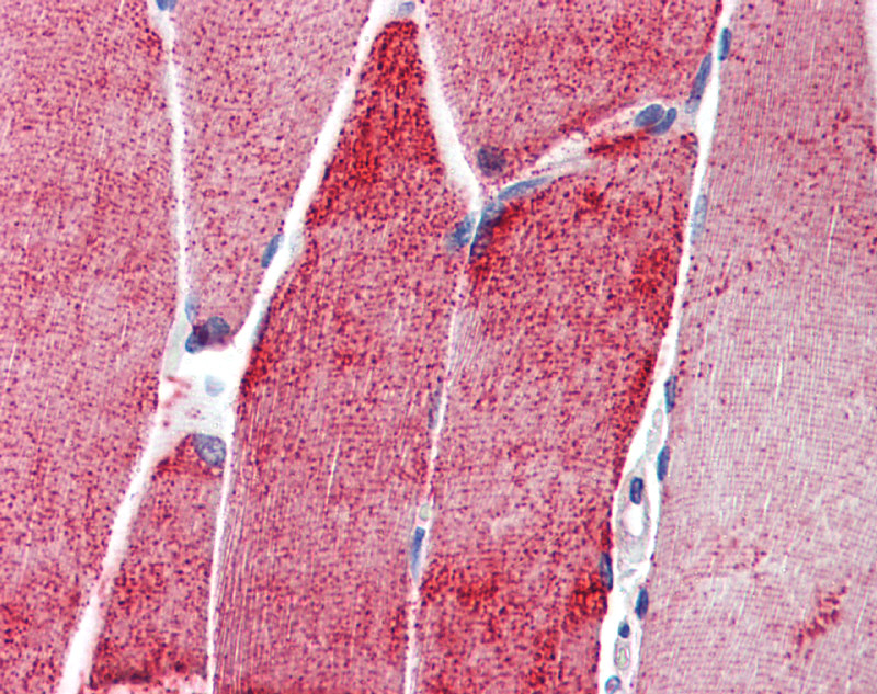 ACTN3 antibody - N-terminal region (ARP41914_P050) in Human Skeletal muscle cells using Immunohistochemistry