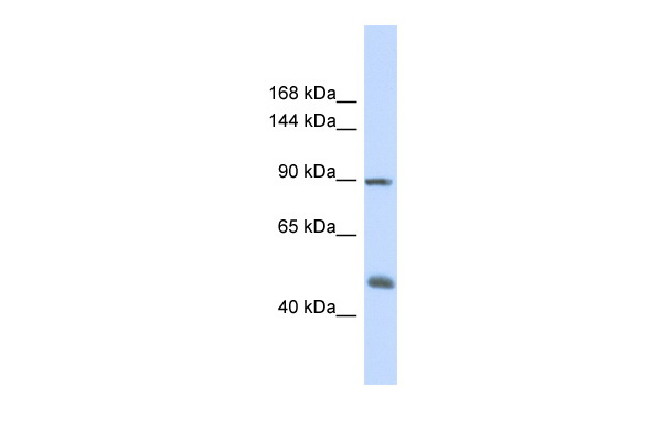 ACTN1 Antibody - middle region (ARP41915_P050) in Human Fetal Muscle cells using Western Blot