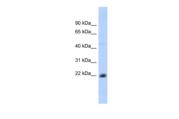 CD40 antibody - N-terminal region (ARP41928_P050) in Human Thymus cells using Western Blot