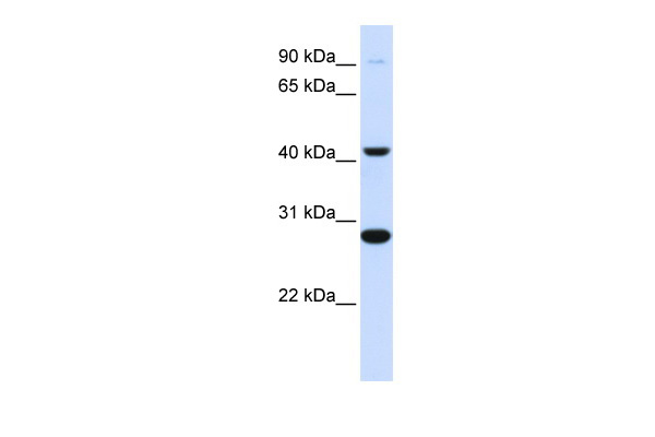CYB561 antibody - middle region (ARP41992_P050) in Human Muscle cells using Western Blot
