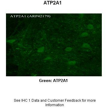 ATP2A1 antibody - N-terminal region (ARP42179_P050) in Rhesus macaque spinal cord cells using Immunohistochemistry