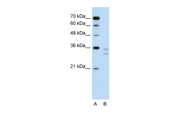 CD8B antibody - N-terminal region (ARP42204_P050) in Human Jurkat cells using Western Blot