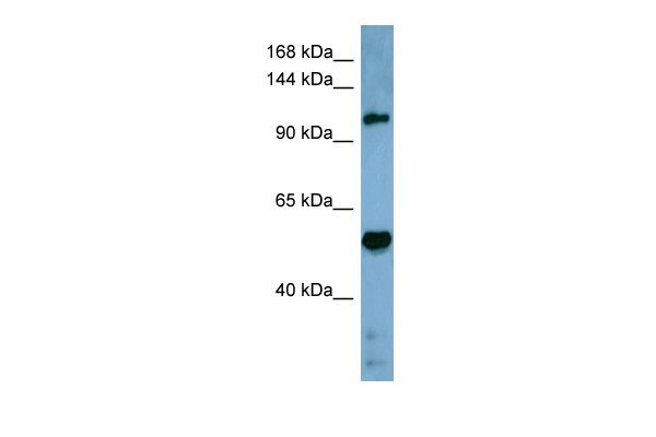 COBLL1 antibody - middle region (ARP42424_P050) in Human Stomach cells using Western Blot