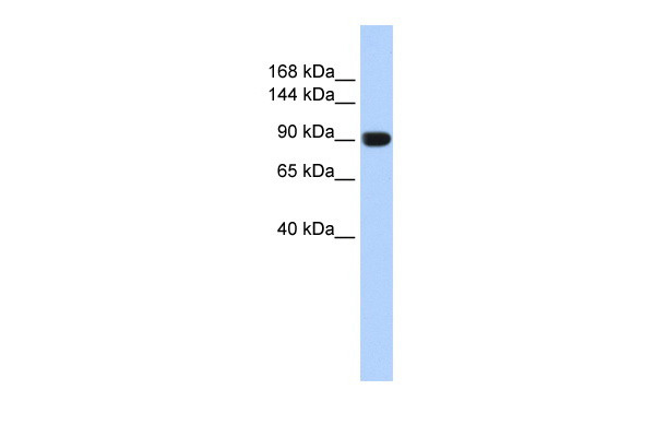 TMEM16A antibody - middle region (ARP42506_P050) in Human Muscle cells using Western Blot
