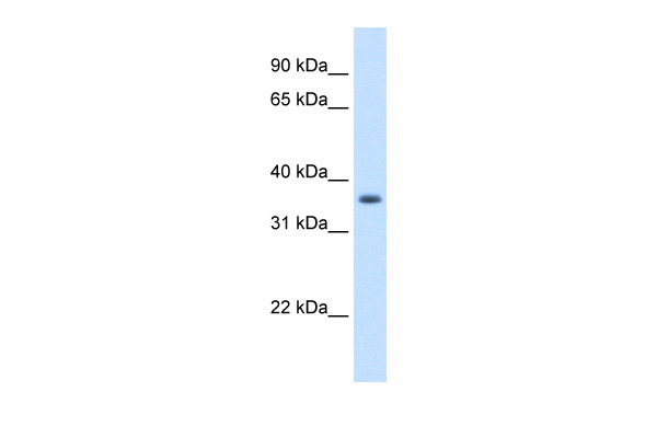 AKR1B10 antibody - N-terminal region (ARP42553_T100) in Human A549 cells using Western Blot