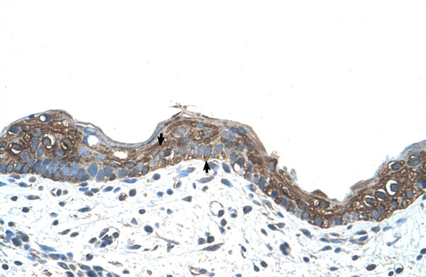 ANK1 antibody - C-terminal region (ARP42566_T100) in Human Skin cells using Immunohistochemistry