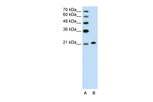 ANK1 antibody - C-terminal region (ARP42566_T100) in Human Jurkat cells using Western Blot