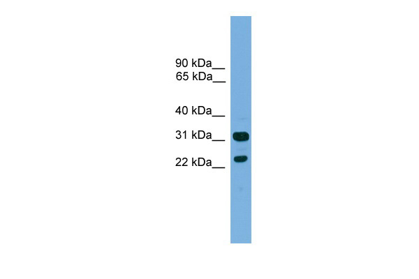 CD8B antibody - middle region (ARP42715_P050) in Human ACHN cells using Western Blot