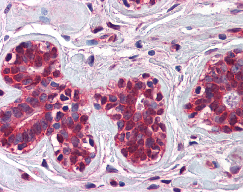 CHFR antibody - N-terminal region (ARP43250_P050) in Human Breast cells using Immunohistochemistry