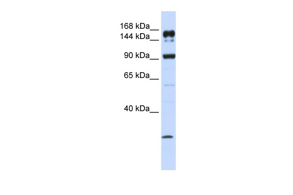 ABCA5 antibody - C-terminal region (ARP43688_P050) in Human MCF-7 cells using Western Blot