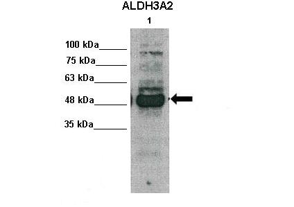 ALDH3A2 antibody - middle region (ARP44273_P050) in human primary hepatocytes cells using Western Blot