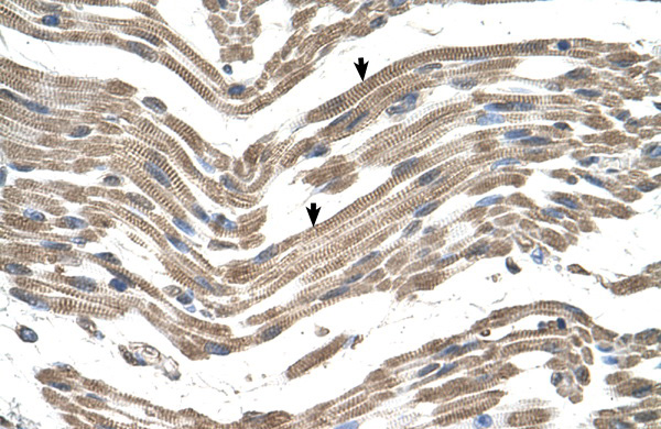C1QB antibody - C-terminal region (ARP44297_P050) in Human Muscle cells using Immunohistochemistry