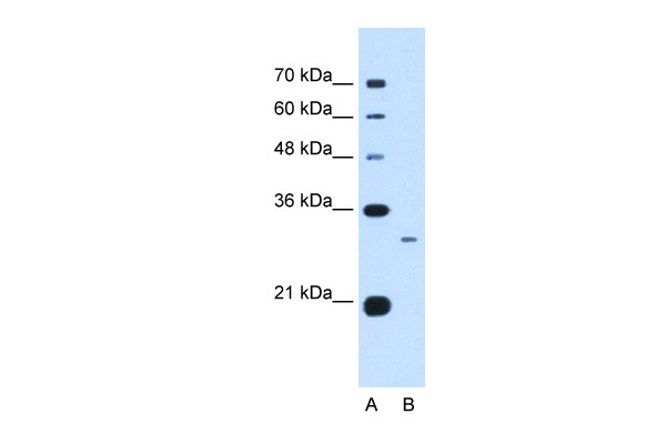 C1QB antibody - C-terminal region (ARP44297_P050) in Human Jurkat cells using Western Blot