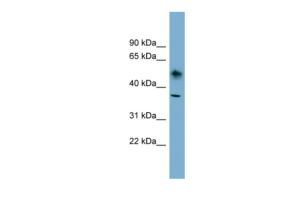 ATP1B1 antibody - N-terminal region (ARP44410_P050) in Human OVCAR-3 cells using Western Blot