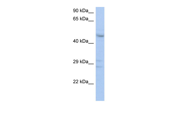 ACPL2 antibody - middle region (ARP44836_P050) in Human THP-1 cells using Western Blot