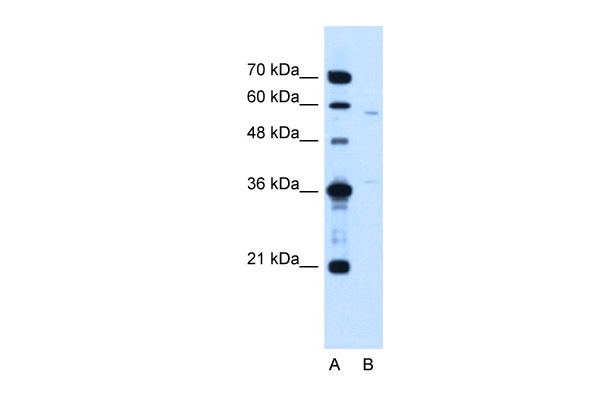 MGC39633 antibody - N-terminal region (ARP44931_T100) in Human Jurkat cells using Western Blot