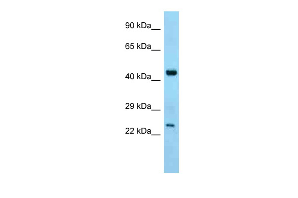 Abhd12 antibody - C-terminal region (ARP44942_P050) in Mouse Thymus cells using Western Blot