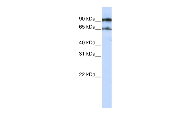 ATG9A antibody - middle region (ARP44985_P050) in Human Jurkat cells using Western Blot