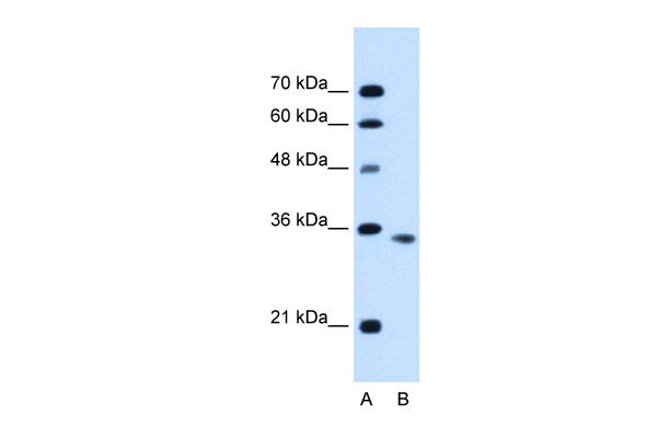 ACVR2B antibody - C-terminal region (ARP45043_P050) in Human HepG2 cells using Western Blot