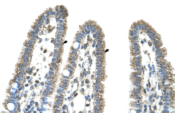 CPS1 antibody - middle region (ARP45690_T100) in Human Intestine cells using Immunohistochemistry