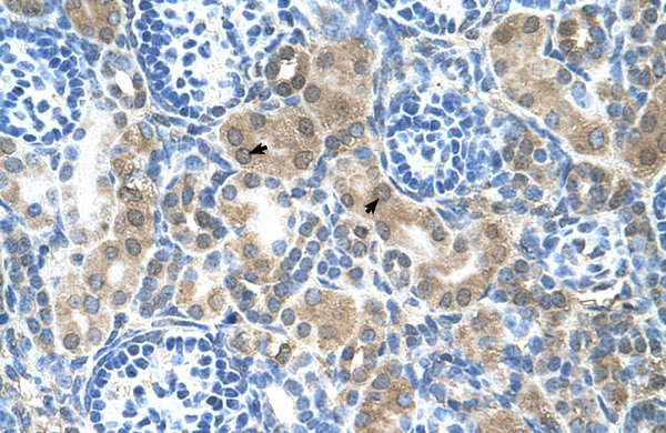 CBS antibody - N-terminal region (ARP45746_T100) in Human Kidney cells using Immunohistochemistry
