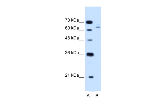 CBS antibody - N-terminal region (ARP45746_T100) in Human HepG2 cells using Western Blot