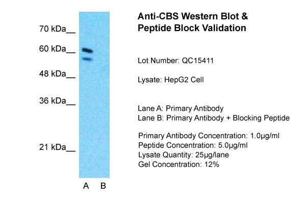 CBS antibody - N-terminal region (ARP45746_T100) in HepG2 cells using Western Blot