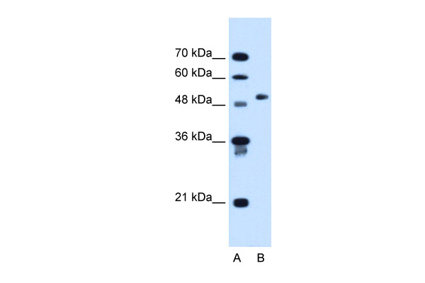 COL6A2 antibody - C-terminal region (ARP45805_T100) in Human HepG2 cells using Western Blot