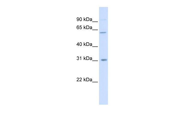 CHST2 antibody - middle region (ARP46423_P050) in Human 293T cells using Western Blot