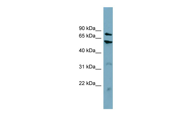 CPT1B antibody - middle region (ARP46444_P050) in Human HT1080 cells using Western Blot
