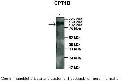 CPT1B antibody - middle region (ARP46444_P050) in Human Capan1 cells using Western Blot