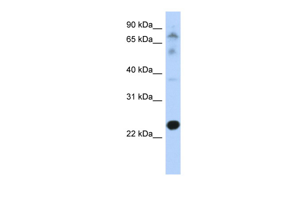 CHIC2 antibody - N-terminal region (ARP46857_P050) in Transfected 293T cells using Western Blot