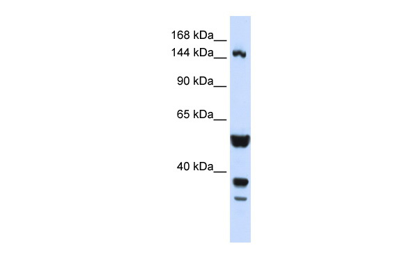 ABI3BP antibody - N-terminal region (ARP47157_P050) in Human HeLa cells using Western Blot