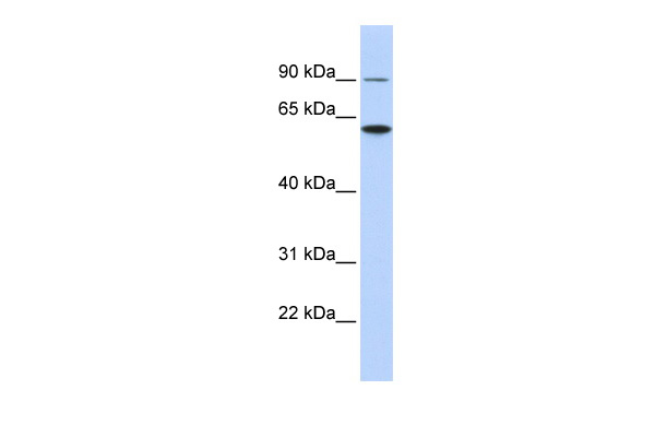DKFZP564J0863 antibody - middle region (ARP47163_P050) in Human HCT15 cells using Western Blot