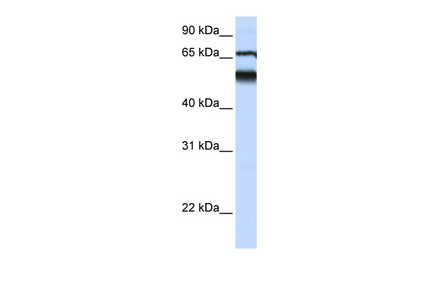 DKFZP564J0863 antibody - middle region (ARP47164_P050) in Human Lung cells using Western Blot