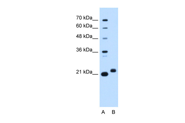 C1orf159 antibody - middle region (ARP47373_P050) in Human HepG2 cells using Western Blot